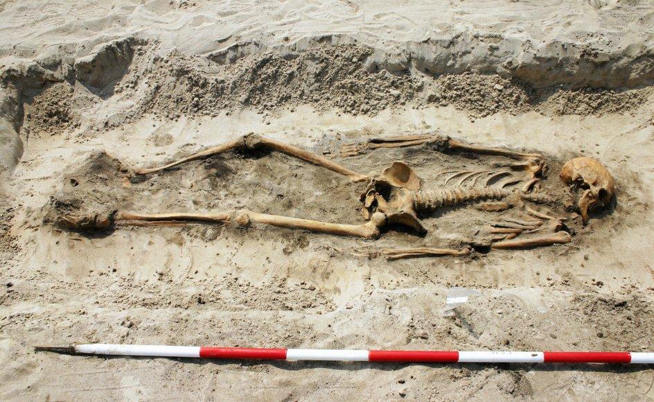 (Manden fra Galgedil skelet foto/foto 2): I 2005 fandt arkæologer skelettet af en ca. 50-årig mand, der bar præg af et slidsomt liv som bonde i 1000-tallet.